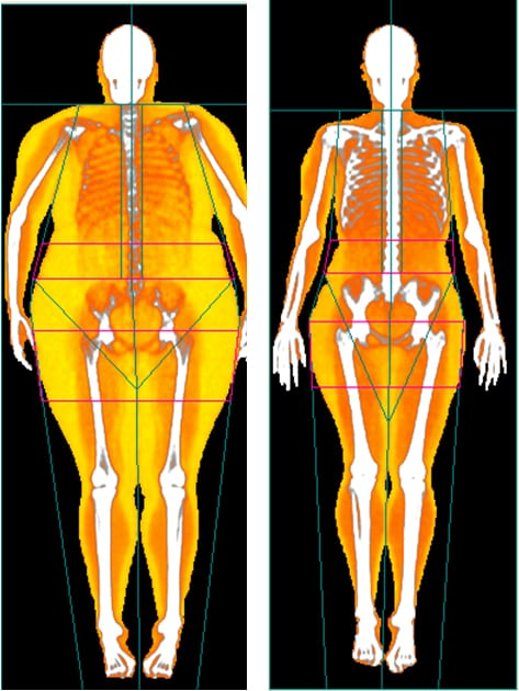 DEXA Scans with Body Map 360